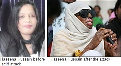 Haseena-Hussain-acid-attack -- honor killing victim