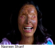 Nasreen-Sharif-acid-attack-victim
