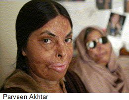 Parveen-Akhtar-acid-attack-victim