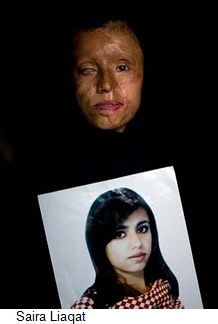 aira-liaqat-acid-attack-victim