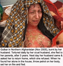 afghanistan-gulbar-burned-by-husband