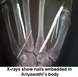 x-ray-reveals-nails-in-Ariyawathi-body inserted by Saudi employer