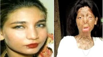 pakistan-acid-attack-victim-fakhra-yunus